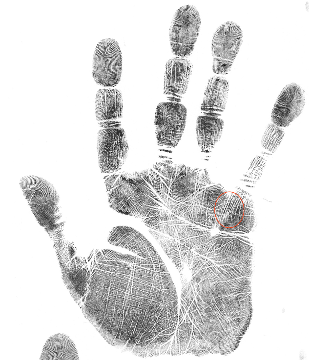 medical stigmata palm marker, gift markeings, hand analysis classes
