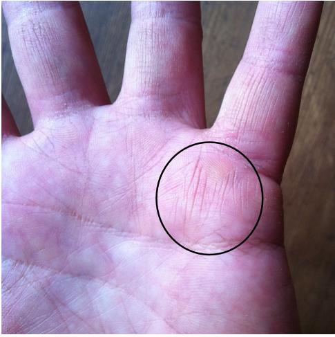 medical stigmata, gifted healer marker