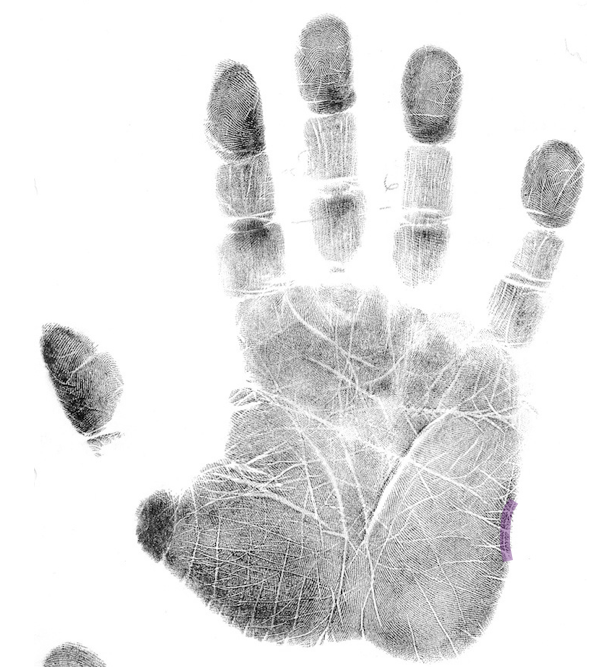 depression palmistry marker, palm reading, how to read a palm.