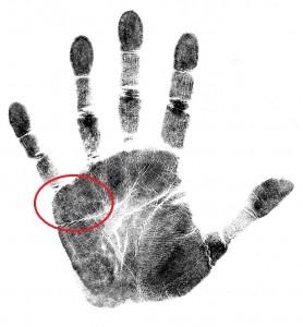 medical stigmata palm marker