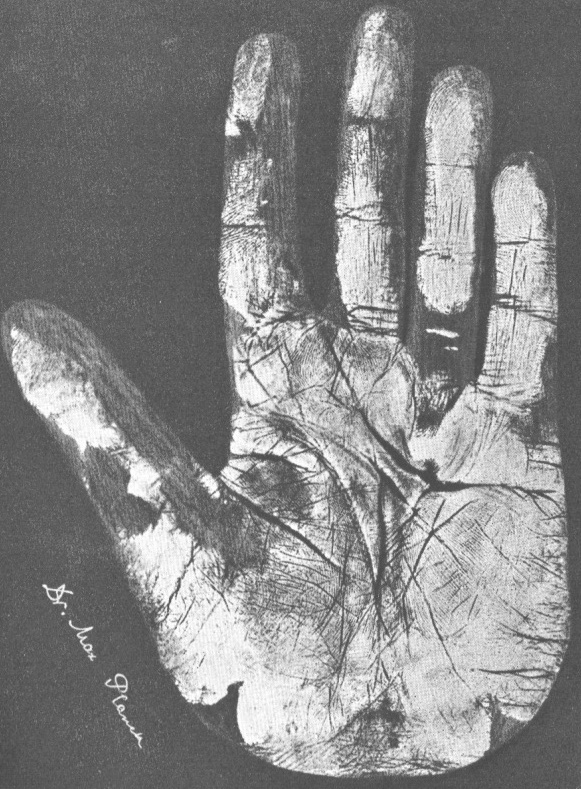Max Planck hand Dupuytren's contracture