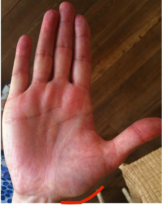 scientific hand analysis, life purpose hand analysis, palm reading marker indicating dancing or sense of rhythm